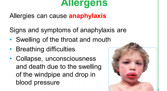 Allergens can cause anaphylaxis