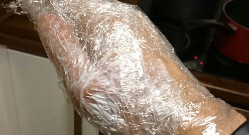 Burns treatment