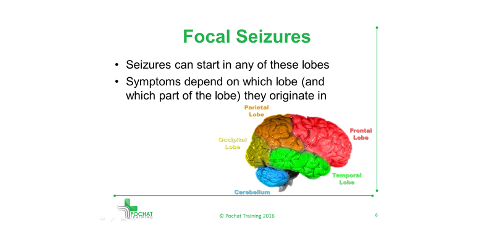 Focal Seizures Are Caused By Different Areas Lobes Of