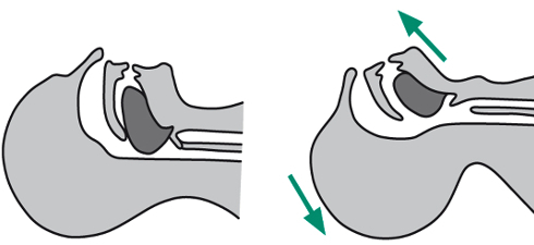 The Head Tilt and Chin Lift procedure moves the tongue away from the back of the throat