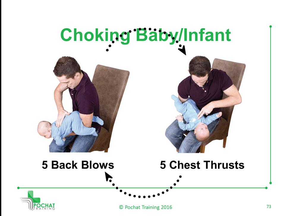 Choking Baby/Infant
